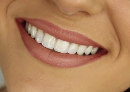 Enamel does not only protect the teeth, but also gives the person a healthy look. Source: Liz20151222 / Wikimedia Commons