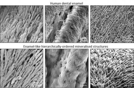 Similarity of structure between the natural dental enamel (above) and the enamel-like material. Source: Alvaro Mata
