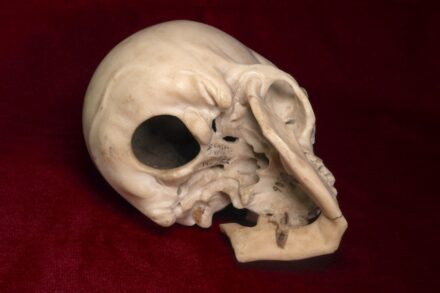 Selbst die Unterseite des Totenkopfes, der übrigens hohl ist, wurde von Bernini minutiös ausgearbeitet. Foto: SKD / Jürgen Lange